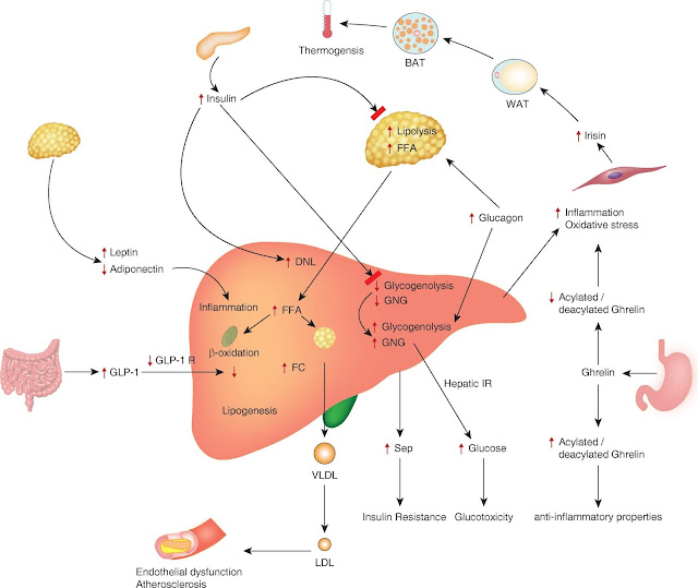 Fatty Liver Disease Solution Nafld Reviews The Non Alcoholic Fatty Liver Disease Solution Does It Help To Remove Toxins From Your Liver What are the symptoms of Non-alcoholic Fatty Liver