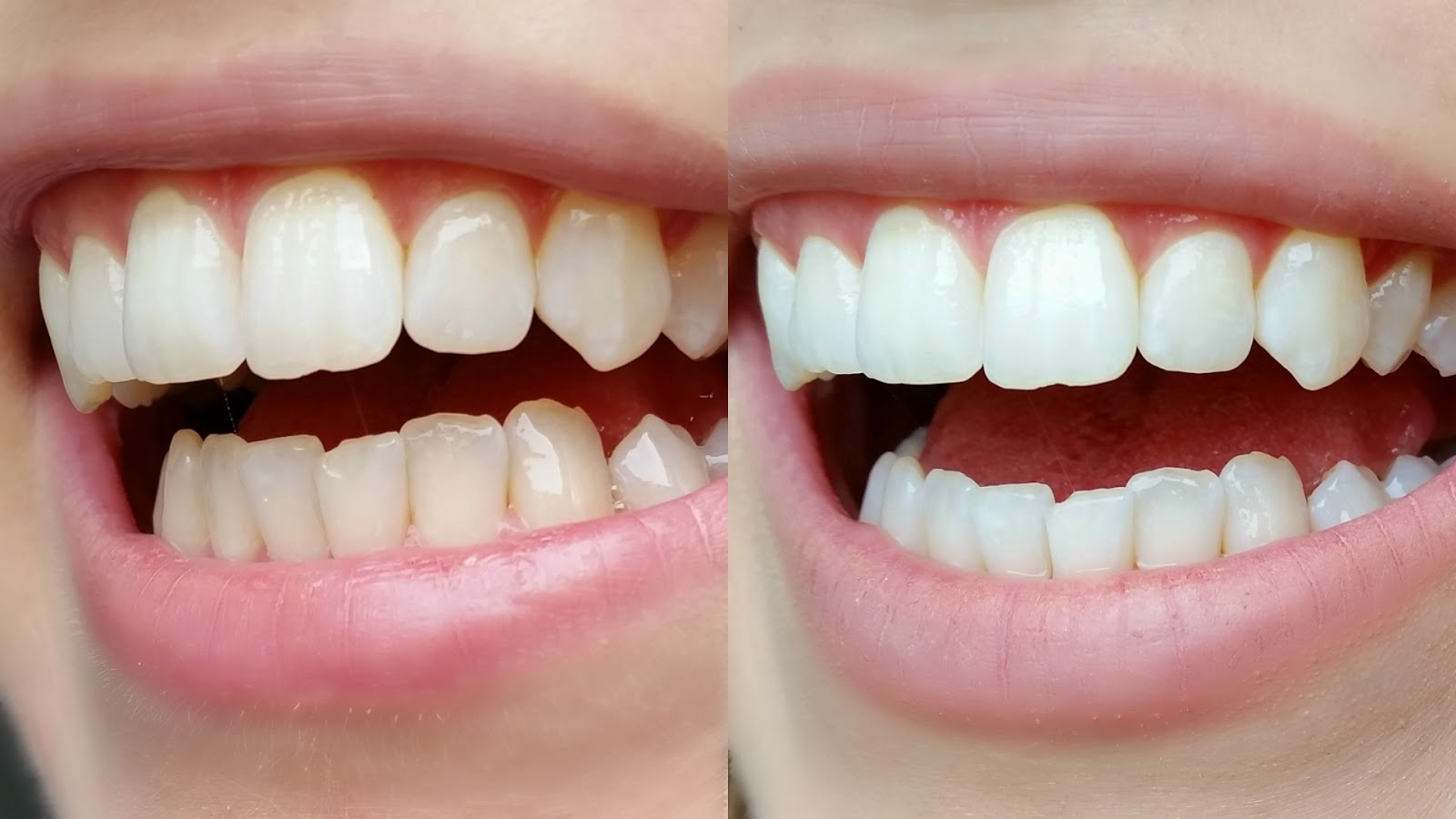 How I Whiten My Teeth at Home – German Video