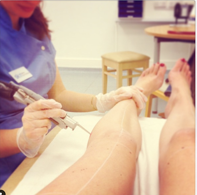 Does Laser Hair Removal Work? From Hairy to Hair Free.