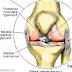 Pilihan Pengobatan untuk Mengatasi Cedera Lutut