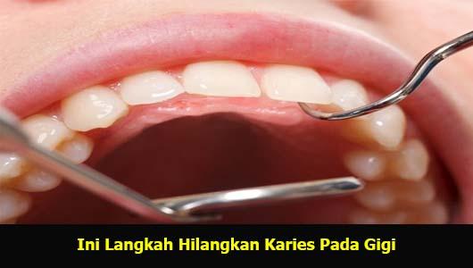 Ini Langkah Hilangkan Karies Pada Gigi
