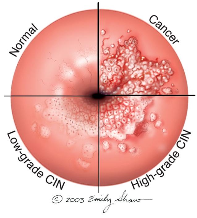 que es una conizacion del utero