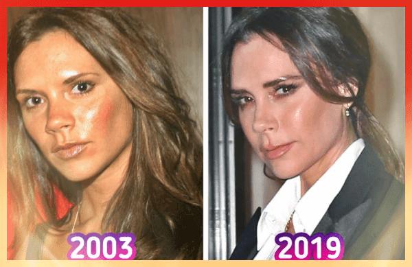 Victoria Beckham Eski Hâli ve Son Hâli