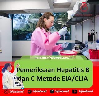Pemeriksaan Hepatitis B dan C Metode EIA CLIA