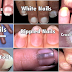 Watch: The Dangerous Sign on How your Nails Gives you Warning About Your Overall Health Condition!