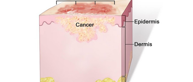stage 2 skin cancer pictures