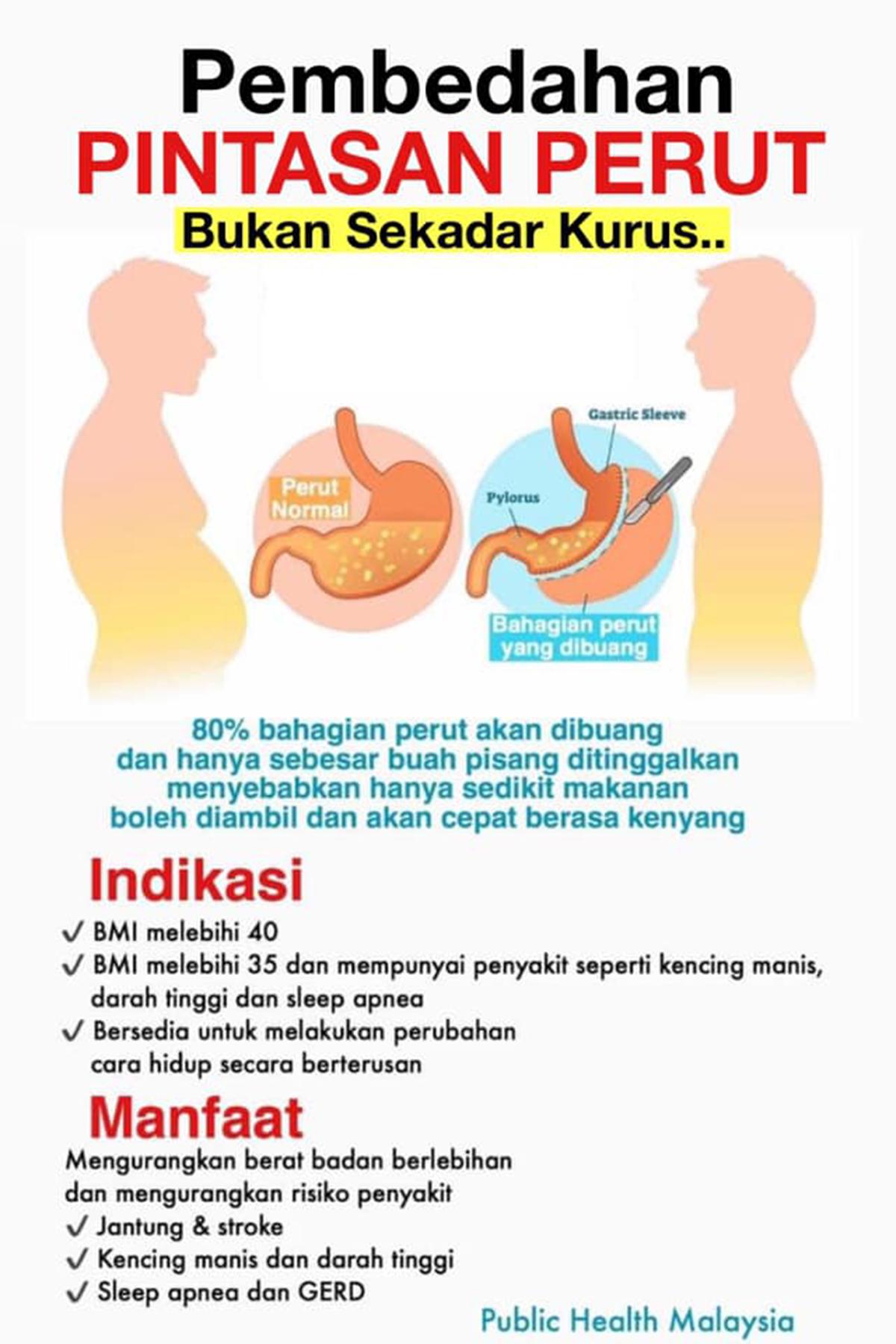 Pembedahan Bariatrik Potong Usus/Perut Cara Cepat Kurus