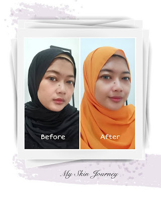 before after menggunakan scarlett acne cream