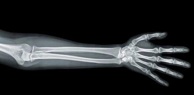 3 Fakta tentang Tulang yang Perlu Diketahui