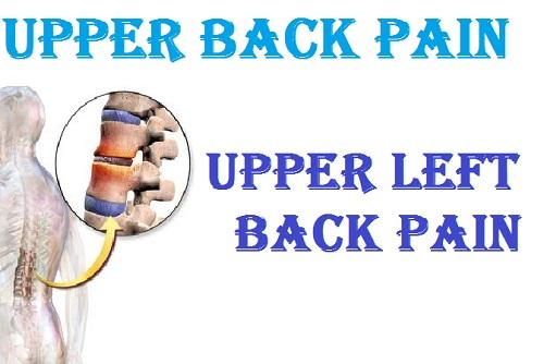 Upper back pain | upper left back pain