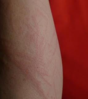 त्वचा से चर्म दूर करने का आर्युवेदिक तरीका Skin Allergy Treatment in Hindi