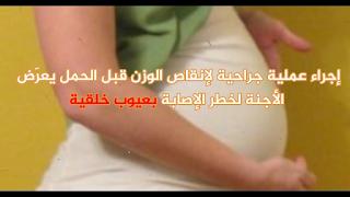 إجراء عملية جراحية لإنقاص الوزن قبل الحمل يعرّض الأجنّة لخطر الإصابة بعيوب خلقية