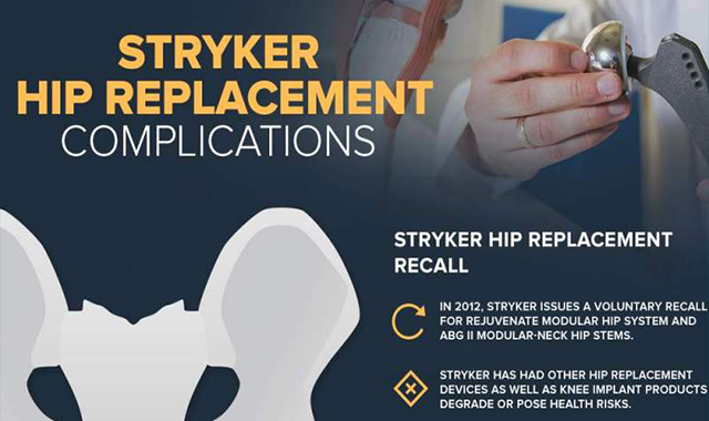 Stryker Hip Replacement complication #infographic