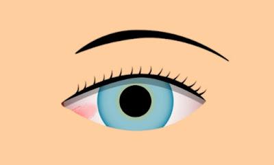 ما هو سبب البقعة الحمراء في العين؟