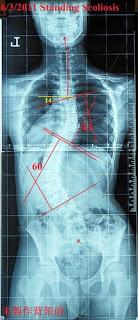 脊椎側彎, 脊椎側彎背架, 脊椎側彎矯正, 脊椎側彎治療