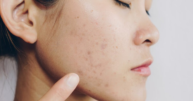 how to get rid of deep acne scars how to get rid of old acne scars how to get rid of acne scars naturally how to get rid of acne scars dermatologist home remedies for acne scars overnight how to remove pimple marks in one day home remedies how to fade acne scars best acne scar removal products how to get rid of old acne scars how to get rid of pitted acne scars how to fade acne scars best acne scar removal products home remedies for acne scars overnight how to get rid of acne scars dermatologist types of acne scars how to get rid of acne scars home remedies how to remove pimple marks in one day home remedies how to get rid of old acne scars best home remedy for acne overnight how to remove scars from face permanently how to fade acne scars best acne scar removal products how to get rid of deep acne scars