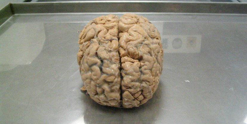 علماء يقومون بطباعة مخ بشري مصغر بالطابعة ثلاثية الأبعاد