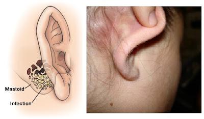 Obat Benjolan di Telinga / Belakang Telinga yg Manjur dan Alami