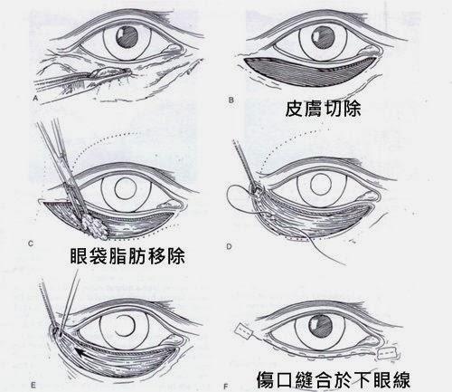 外開眼袋手術步驟