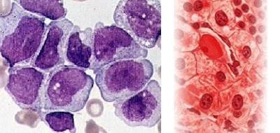 اعراض واسباب سرطان الدم النخاعى الحاد