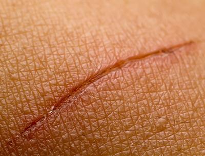 2 remèdes naturels pour effacer les cicatrices