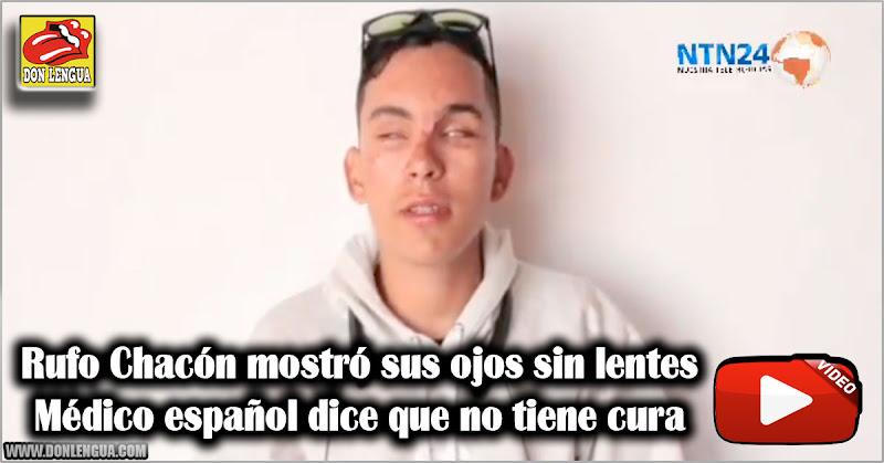 Rufo Chacón mostró sus ojos sin lentes - Médico español dice que no tiene cura