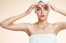 Penyebab Jerawat di Wajah dan Cara Mengatasinya secara Natural