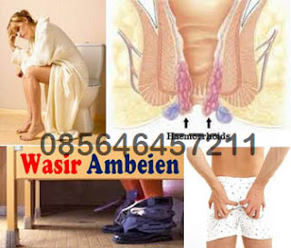 Obat Wasir (Hemoroid) dan Benjolan di Pantat