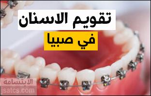 أسعار تقويم الأسنان في صبيا