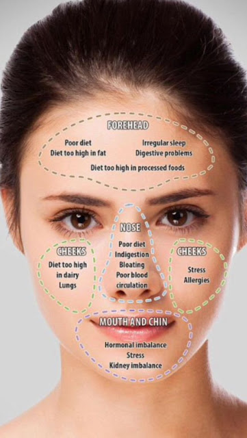 Pimple Chart