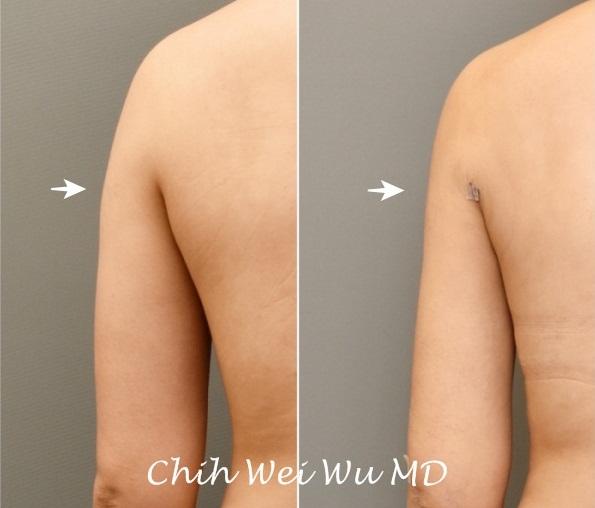 ⬆️手臂抽脂:上臂與側背的抽脂,左為術前,右為術後