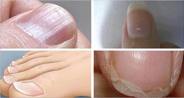 7 Condiciones de uñas relacionado con enfermedades graves! No los ignore!