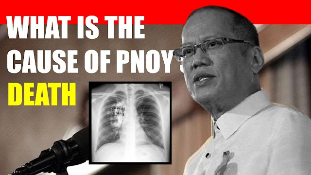 Real cause of PNOY's death