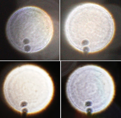 orbs with colon pattern