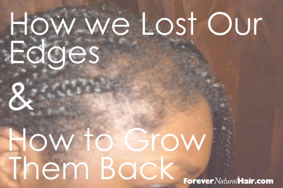 How We Lost Our Edges and How to Make them Grow Back