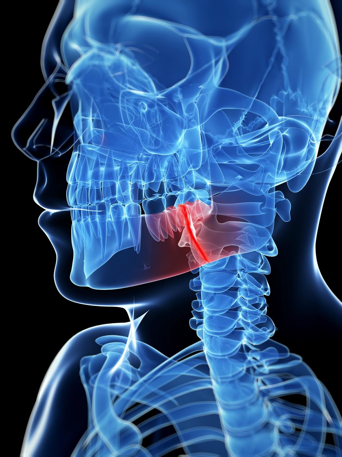 Resultado de imagem para dor na boca fratura