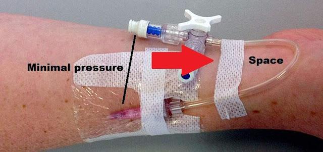 kesalahan pemasangan infus