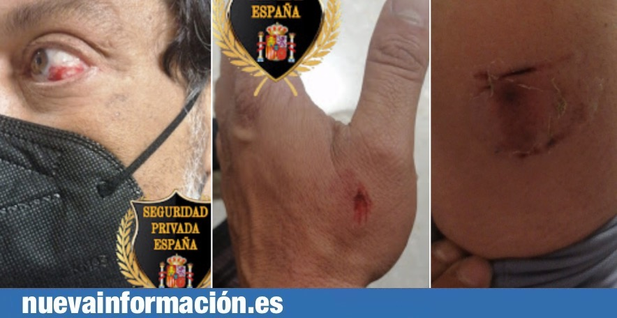 Brutal agresión en Algeciras a un vigilante de seguridad de la estación de autobuses.