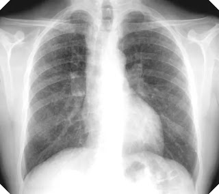 What is Silicosis