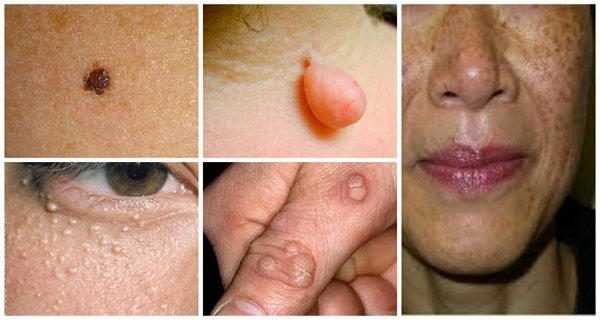 Natural Ways To Destroy Moles, Warts, Blackheads, Skin Tags And Age Spots