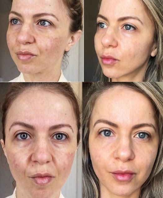 Prendre soin de votre peau avec ces traitements naturels contre le mélasma