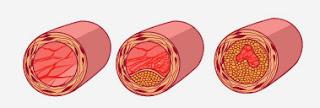 Артериосклероз-причина гипертонии
