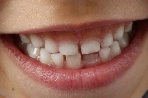 4 طرق لعلاج ألم الأسنان في المنزل.