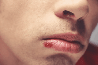 herpes labial arginina excesso