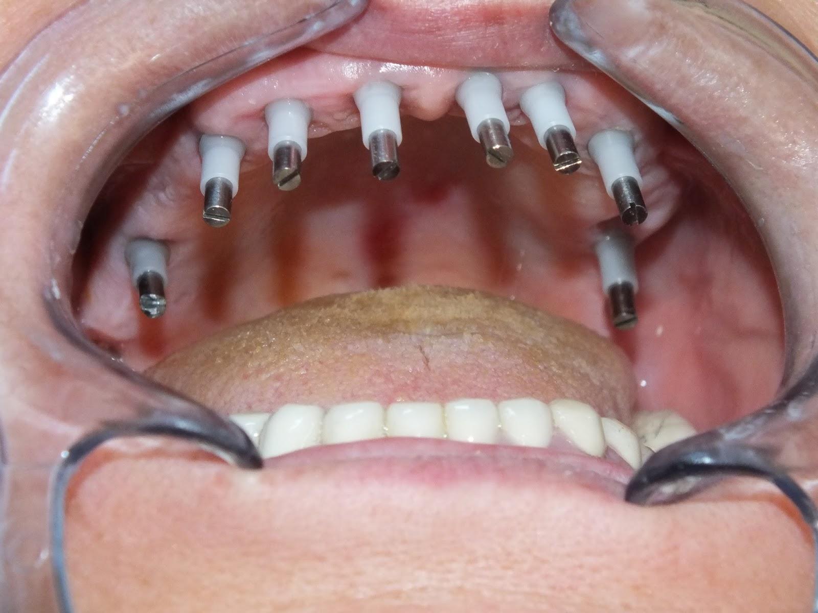 valium withdrawal symptoms dosespot dental implant