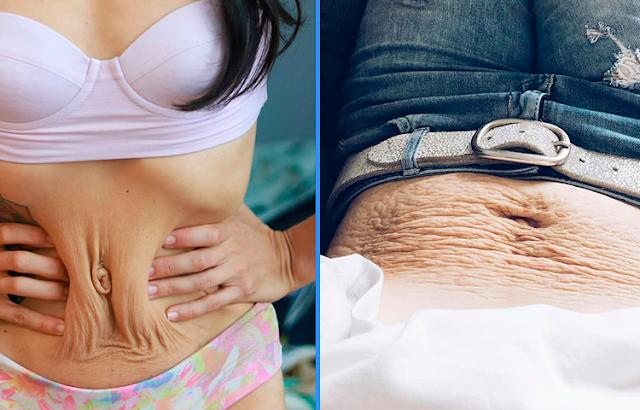 Без прикрас: Женщины показали, как на самом деле выглядит тело после родов