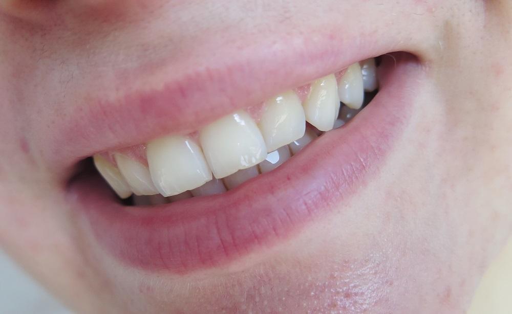 Dr Martin Schwarz Expert 38% | Wybielanie zębów w domowym zaciszu