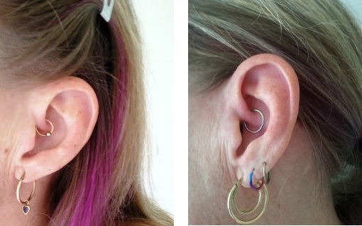 a 12 month updating on my daith piercing and how it affects my headaches