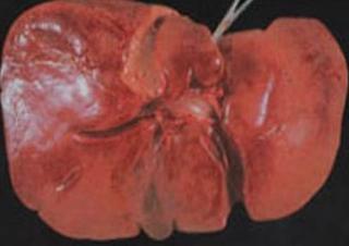 Pencegahan Penularan Infeksi Penyakit Hepatitis B