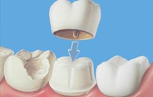 5 اضرار محتملة لتلبيس الاسنان